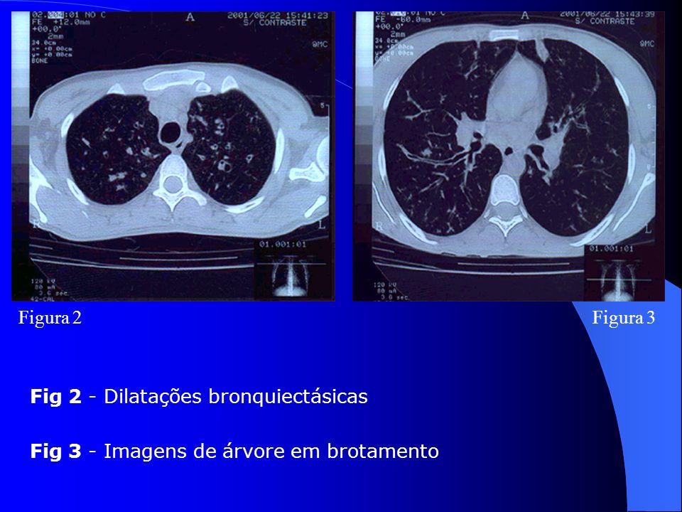 Figura 2Figura 3 Fig 2 - Dilatações bronquiectásicas Fig 3 - Imagens de árvore em brotamento