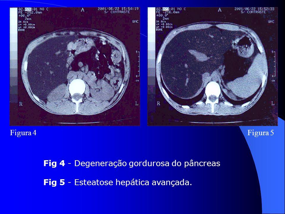 Figura 4Figura 5 Fig 4 - Degeneração gordurosa do pâncreas Fig 5 - Esteatose hepática avançada.