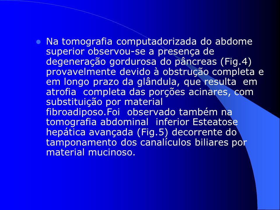 Na tomografia computadorizada do abdome superior observou-se a presença de degeneração gordurosa do pâncreas (Fig.4) provavelmente devido à obstrução