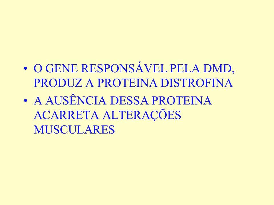 O GENE RESPONSÁVEL PELA DMD, PRODUZ A PROTEINA DISTROFINA A AUSÊNCIA DESSA PROTEINA ACARRETA ALTERAÇÕES MUSCULARES