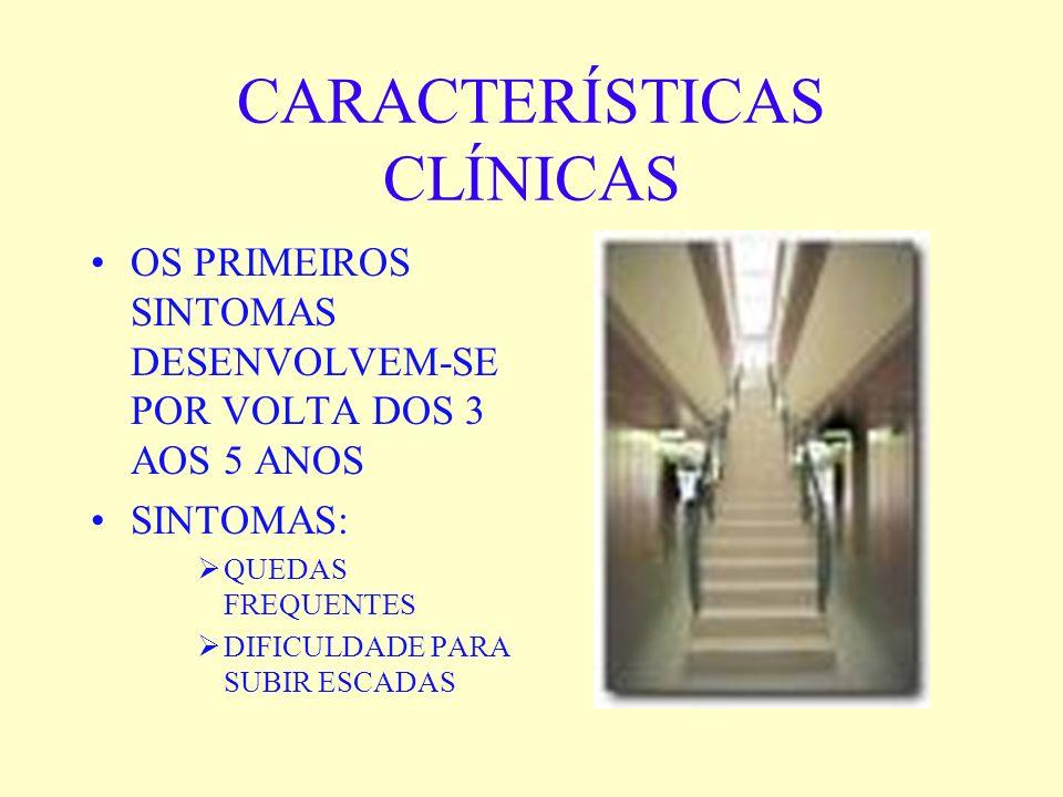CARACTERÍSTICAS CLÍNICAS OS PRIMEIROS SINTOMAS DESENVOLVEM-SE POR VOLTA DOS 3 AOS 5 ANOS SINTOMAS: QUEDAS FREQUENTES DIFICULDADE PARA SUBIR ESCADAS