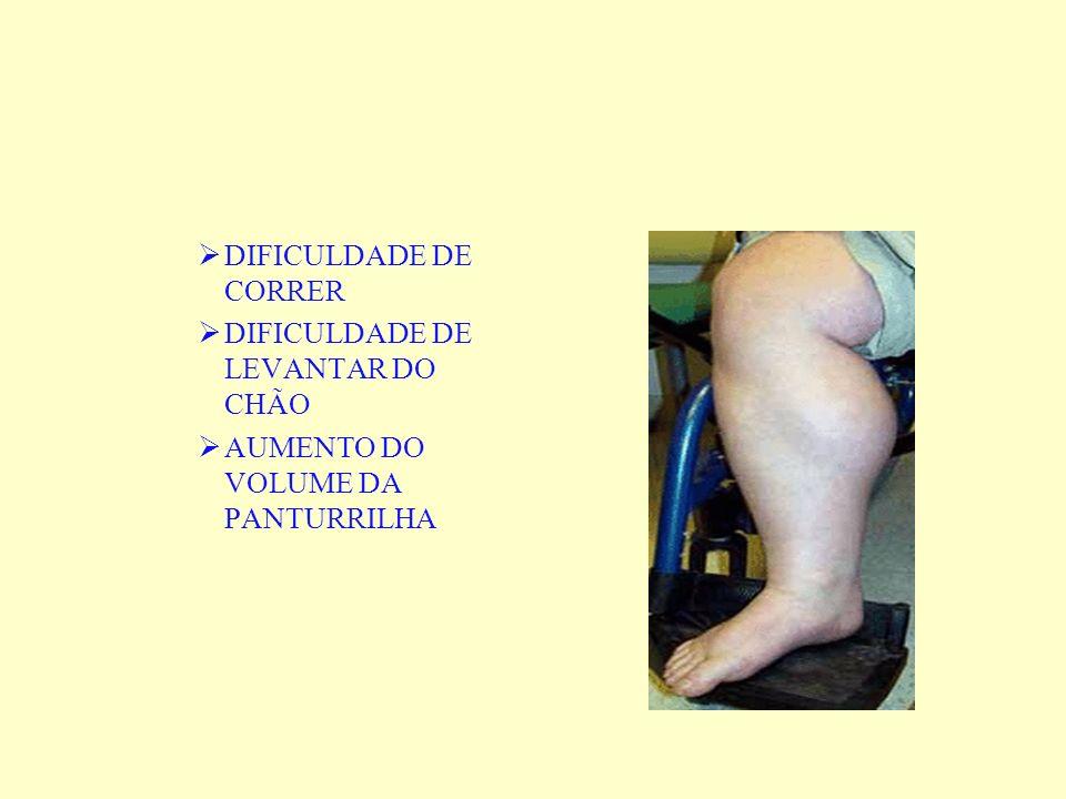 DIFICULDADE DE CORRER DIFICULDADE DE LEVANTAR DO CHÃO AUMENTO DO VOLUME DA PANTURRILHA