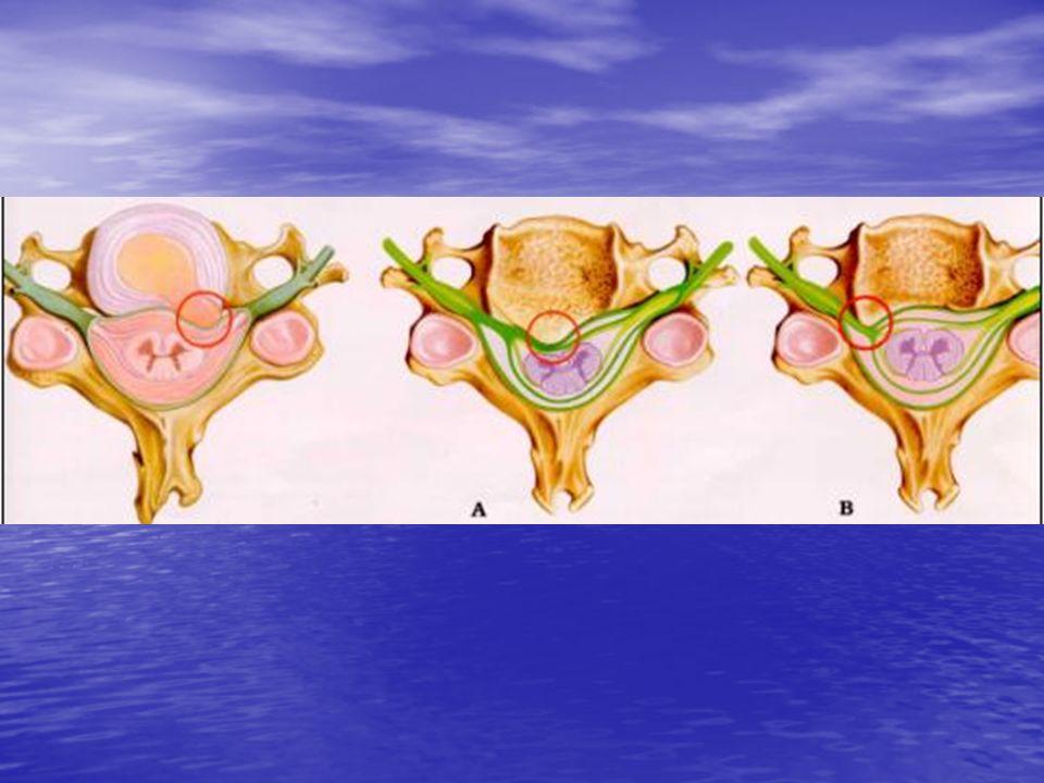 Luxação pós - Laminectomia Luxação pós - Laminectomia Após a remoção cirúrgica de lâminas, facetas, ligamentos e outras estruturas que estabilizam a coluna vertebral.