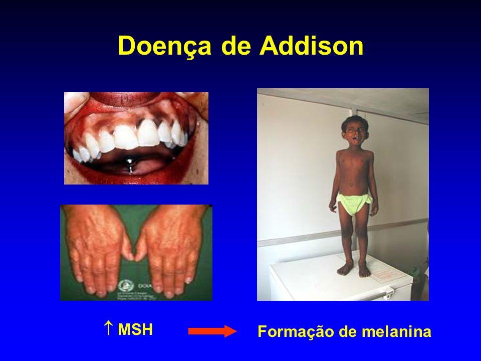 Doença de Addison MSH Formação de melanina