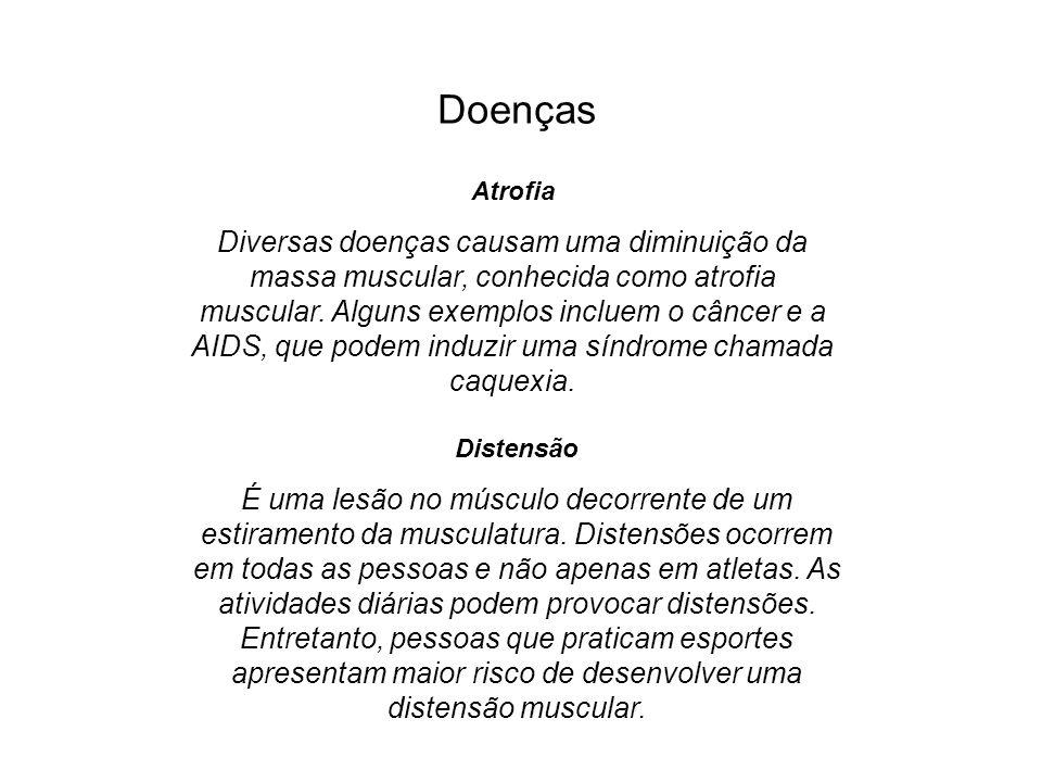 Doenças Atrofia Diversas doenças causam uma diminuição da massa muscular, conhecida como atrofia muscular. Alguns exemplos incluem o câncer e a AIDS,