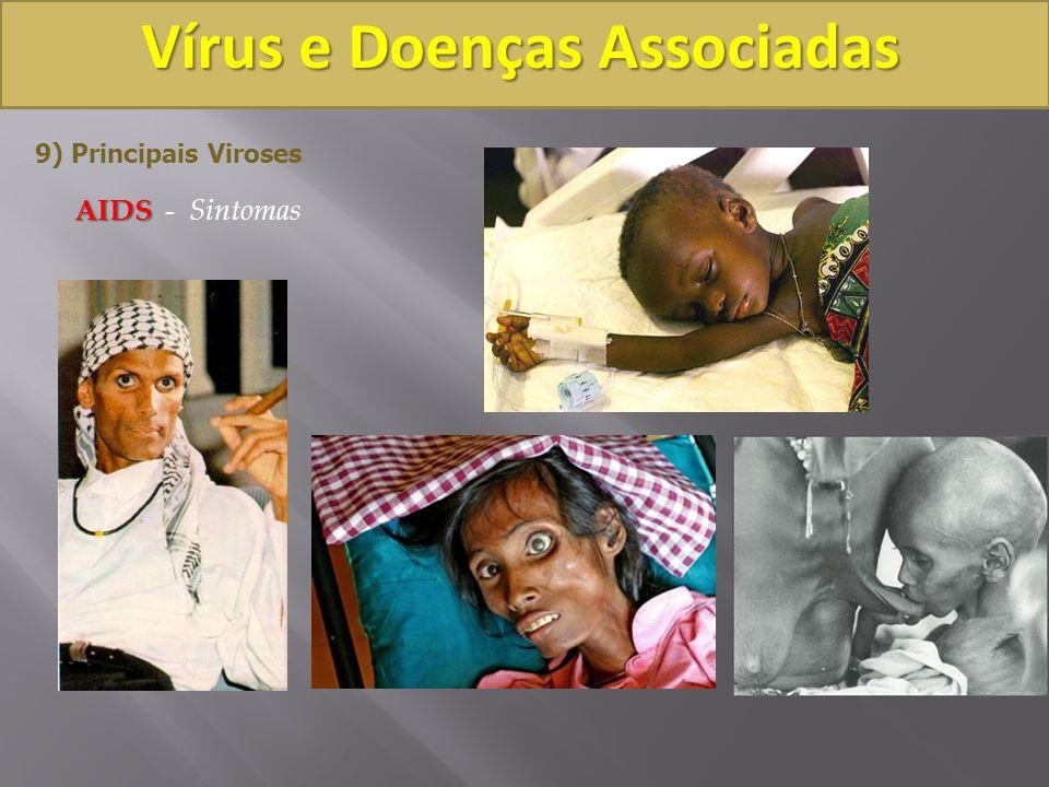 Vírus e Doenças Associadas 9) Principais Viroses AIDS AIDS - Sintomas