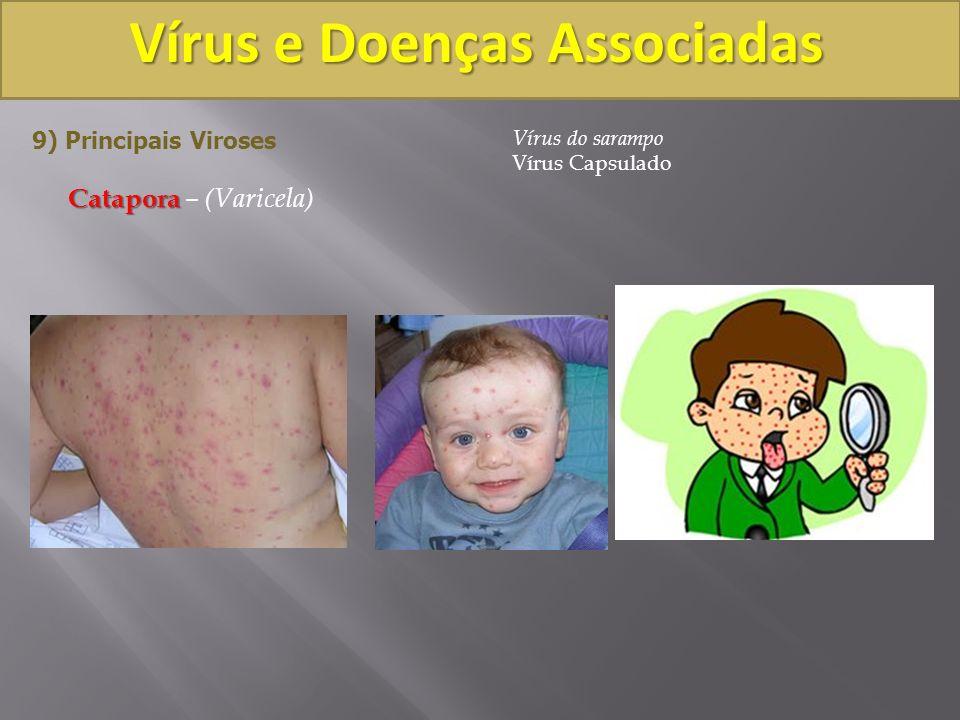 Vírus e Doenças Associadas 9) Principais Viroses Catapora Catapora – (Varicela) Vírus do sarampo Vírus Capsulado