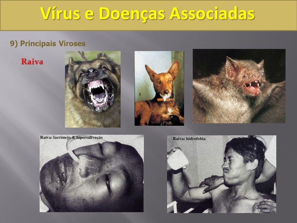 Vírus e Doenças Associadas 9) Principais VirosesRaiva