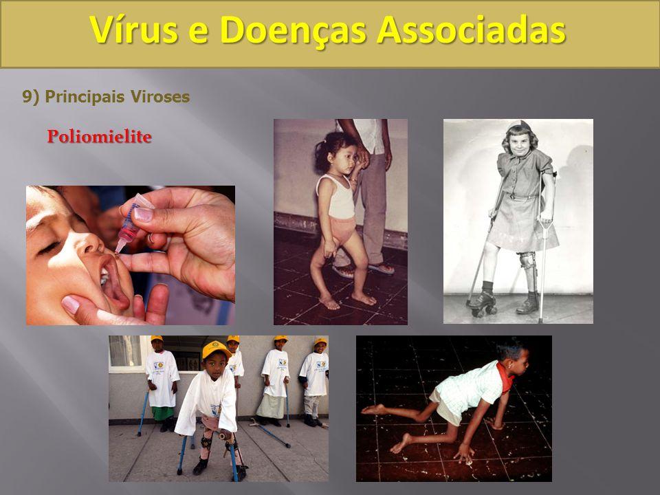 Vírus e Doenças Associadas 9) Principais VirosesPoliomielite