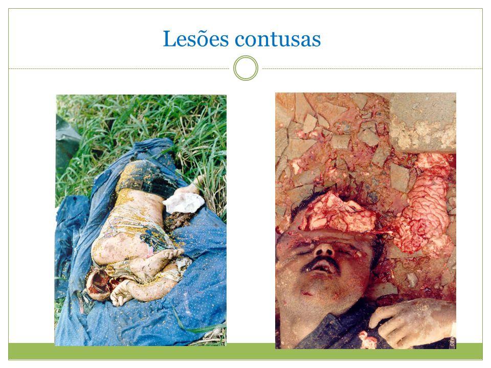 Lesões contusas