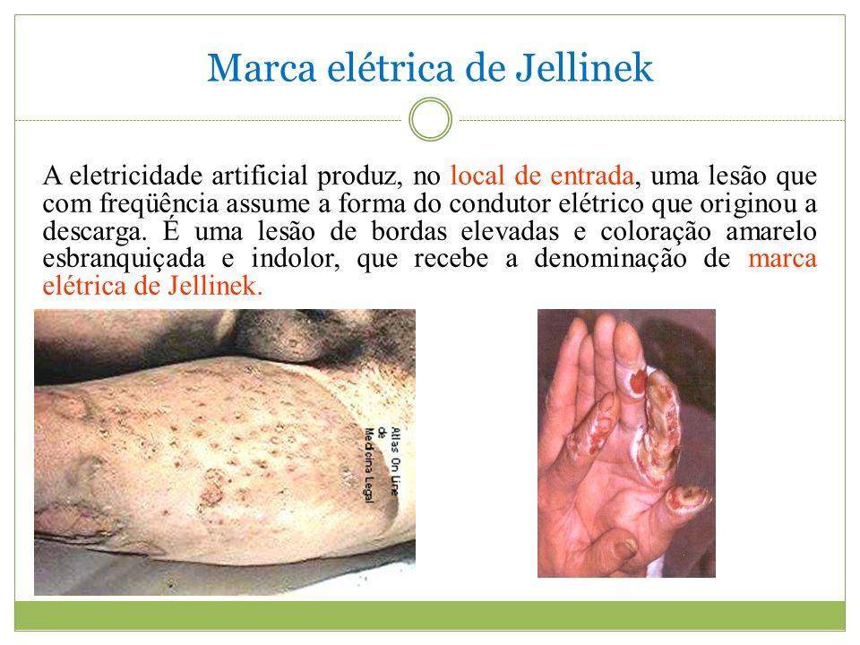 Marca elétrica de Jellinek A eletricidade artificial produz, no local de entrada, uma lesão que com freqüência assume a forma do condutor elétrico que originou a descarga.