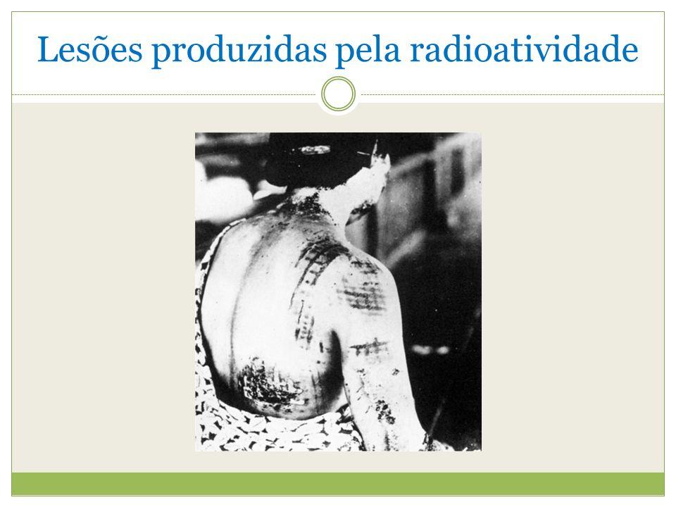 Lesões produzidas pela radioatividade