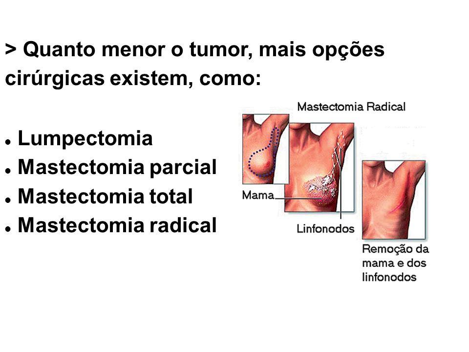 > Quanto menor o tumor, mais opções cirúrgicas existem, como: Lumpectomia Mastectomia parcial Mastectomia total Mastectomia radical