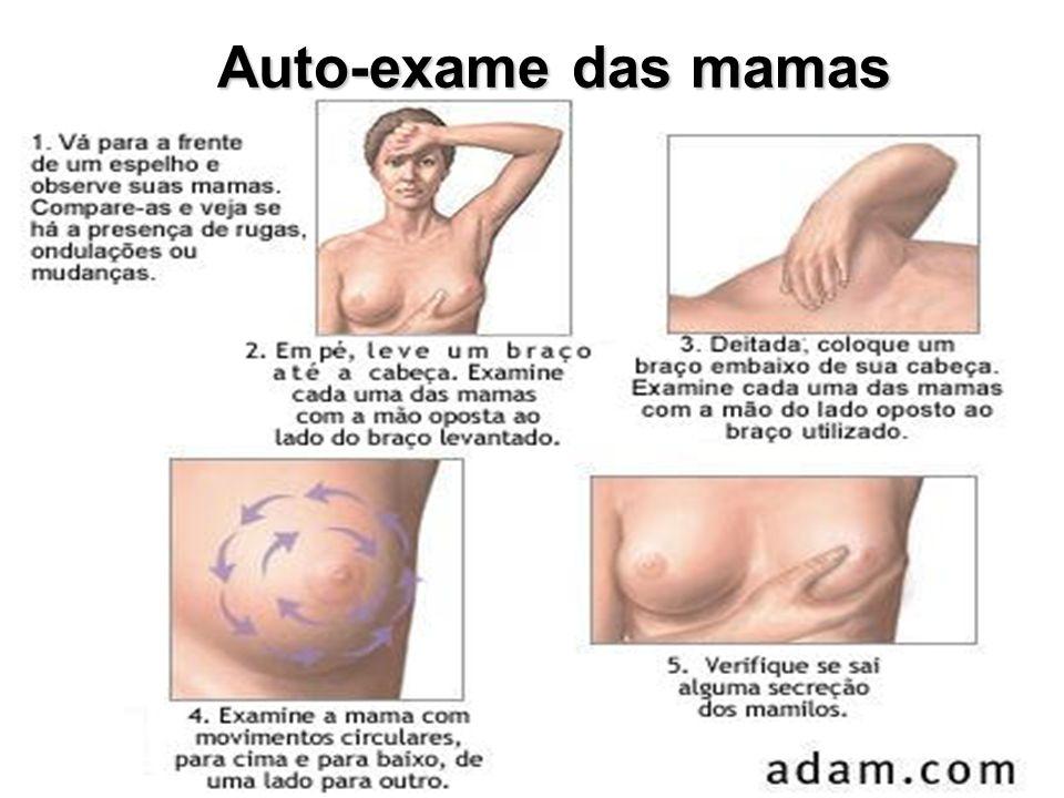 Auto-exame das mamas