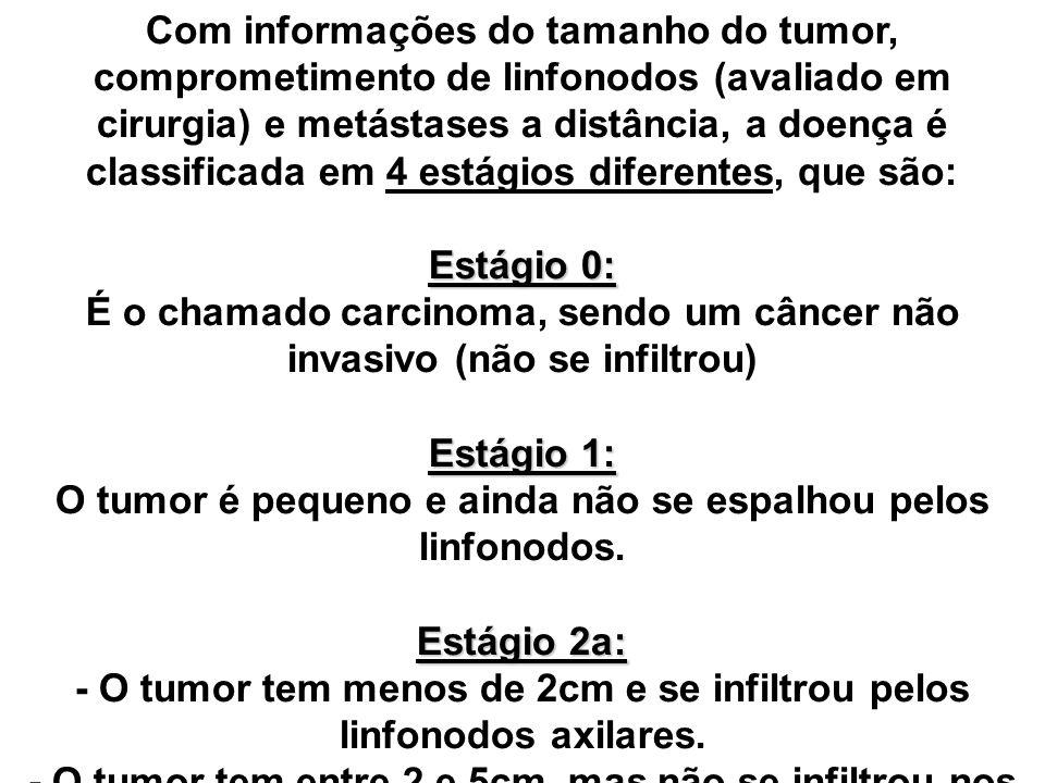 Com informações do tamanho do tumor, comprometimento de linfonodos (avaliado em cirurgia) e metástases a distância, a doença é classificada em 4 estág