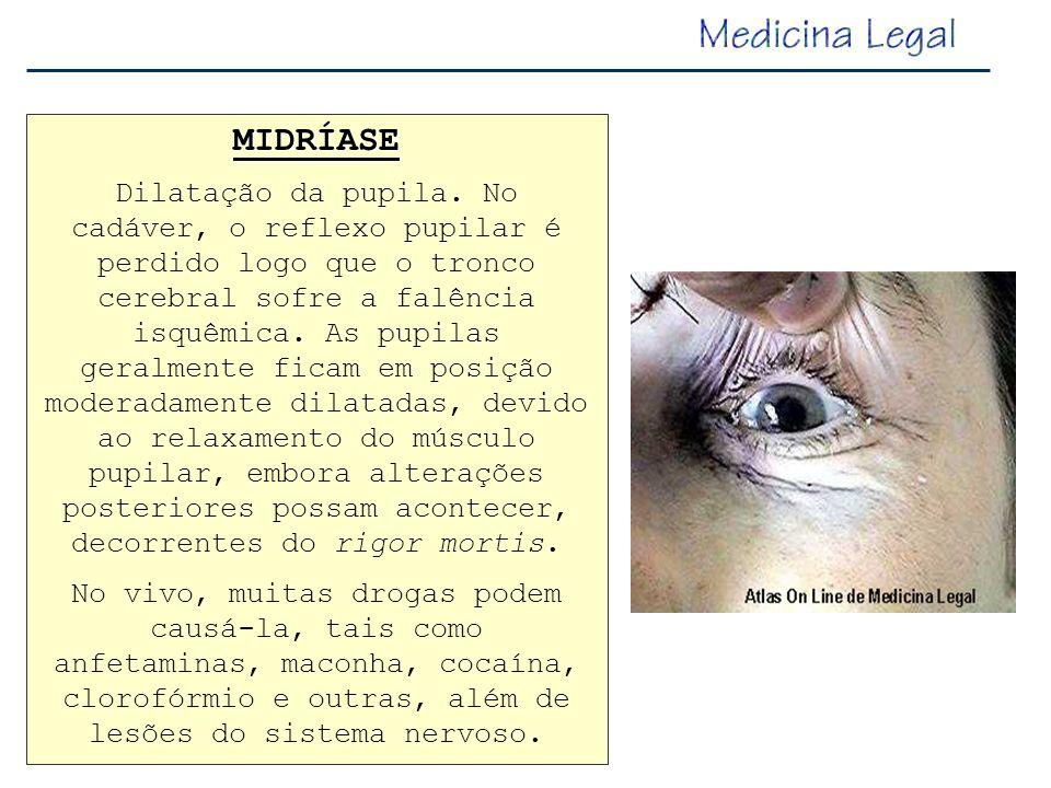 MIDRÍASE Dilatação da pupila. No cadáver, o reflexo pupilar é perdido logo que o tronco cerebral sofre a falência isquêmica. As pupilas geralmente fic