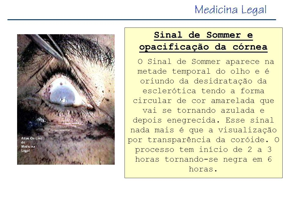 Sinal de Sommer e opacificação da córnea O Sinal de Sommer aparece na metade temporal do olho e é oriundo da desidratação da esclerótica tendo a forma