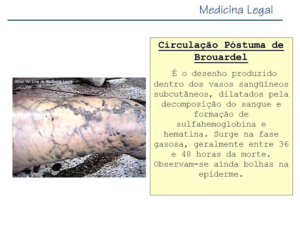 Circulação Póstuma de Brouardel É o desenho produzido dentro dos vasos sangüíneos subcutâneos, dilatados pela decomposição do sangue e formação de sul