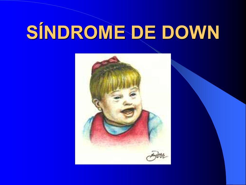 Definição É o distúrbio cromossômico mais comum que se caracteriza por um atraso do desenvolvimento tanto das funções motoras do corpo como das funções mentais.