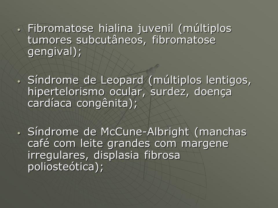 Fibromatose hialina juvenil (múltiplos tumores subcutâneos, fibromatose gengival); Fibromatose hialina juvenil (múltiplos tumores subcutâneos, fibroma