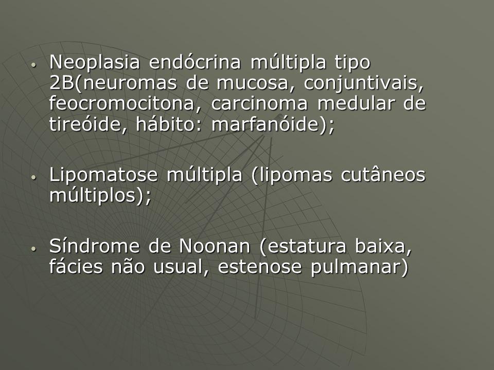 Neoplasia endócrina múltipla tipo 2B(neuromas de mucosa, conjuntivais, feocromocitona, carcinoma medular de tireóide, hábito: marfanóide); Neoplasia e