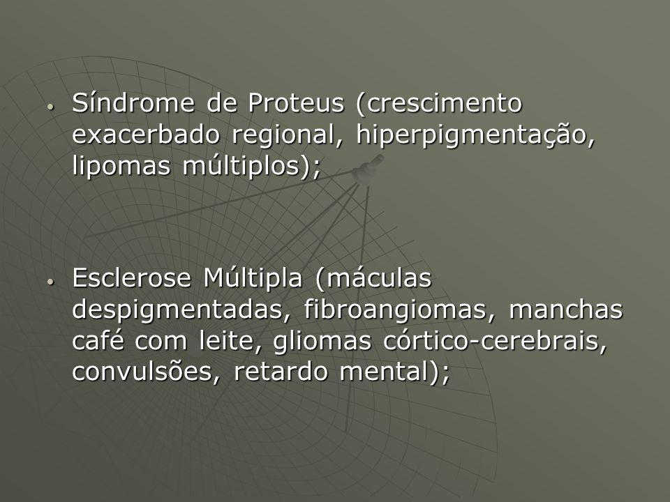 Síndrome de Proteus (crescimento exacerbado regional, hiperpigmentação, lipomas múltiplos); Síndrome de Proteus (crescimento exacerbado regional, hipe