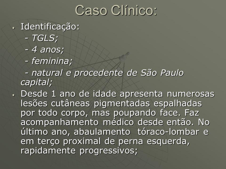 Caso Clínico: Identificação: Identificação: - TGLS; - TGLS; - 4 anos; - 4 anos; - feminina; - feminina; - natural e procedente de São Paulo capital; -