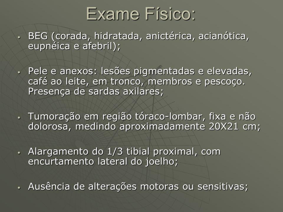 Exame Físico: BEG (corada, hidratada, anictérica, acianótica, eupnéica e afebril); BEG (corada, hidratada, anictérica, acianótica, eupnéica e afebril)