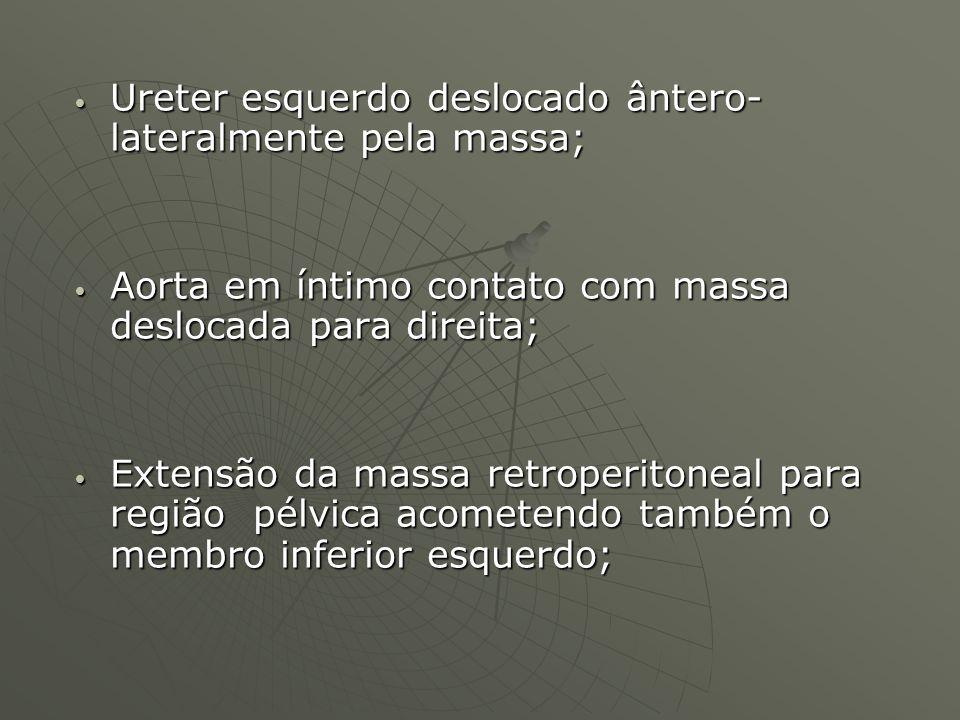 Ureter esquerdo deslocado ântero- lateralmente pela massa; Ureter esquerdo deslocado ântero- lateralmente pela massa; Aorta em íntimo contato com mass
