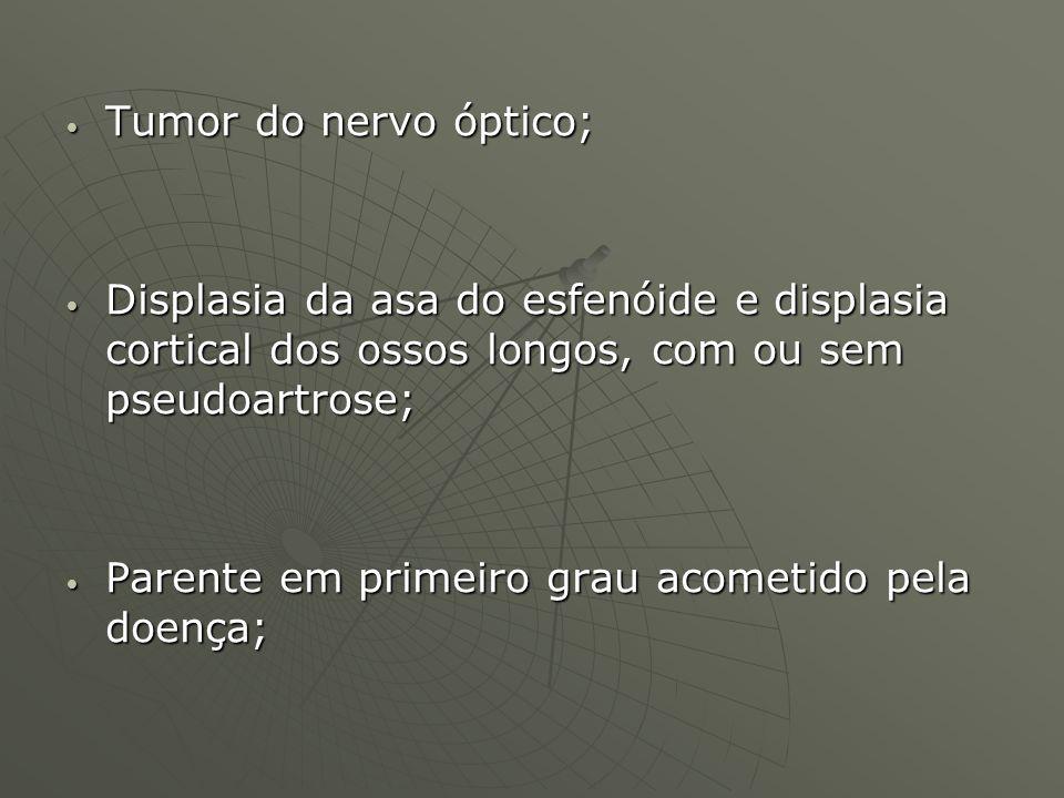 Tumor do nervo óptico; Tumor do nervo óptico; Displasia da asa do esfenóide e displasia cortical dos ossos longos, com ou sem pseudoartrose; Displasia