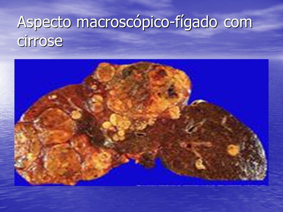 Aspecto macroscópico-fígado com cirrose