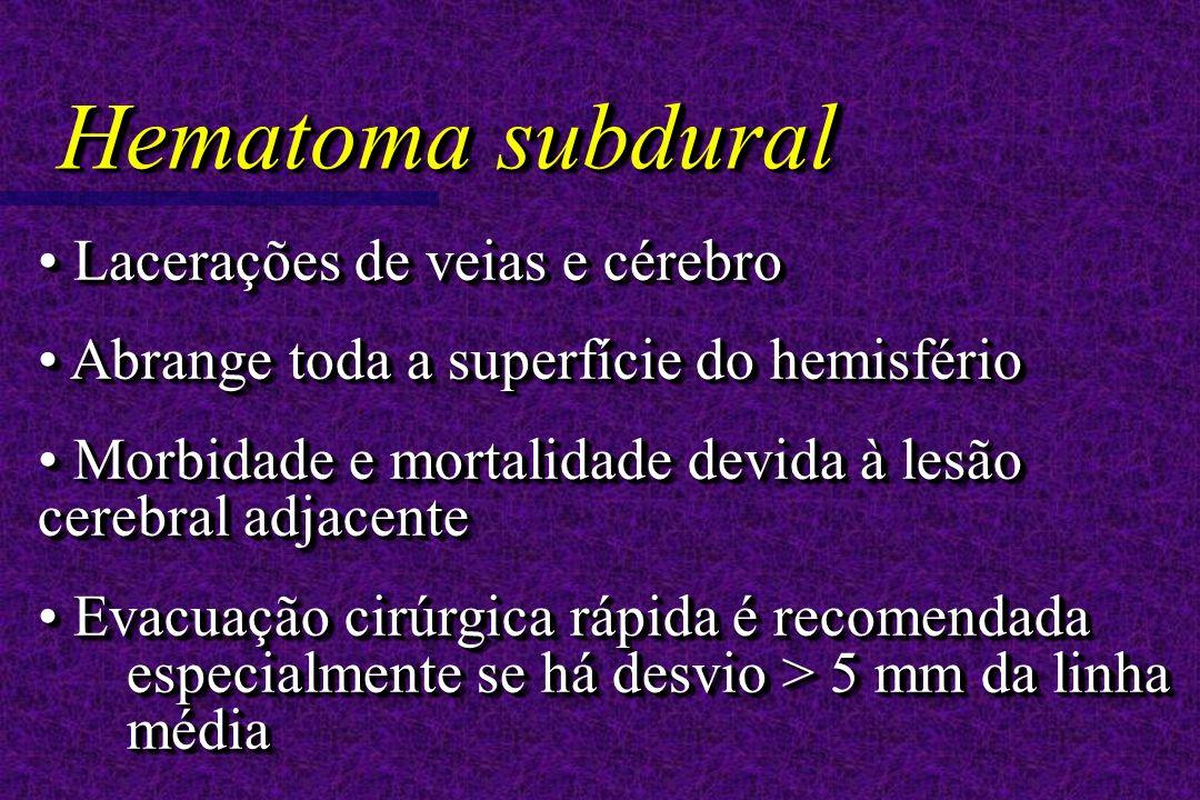 Lacerações de veias e cérebro Lacerações de veias e cérebro Abrange toda a superfície do hemisfério Abrange toda a superfície do hemisfério Morbidade e mortalidade devida à lesão cerebral adjacente Morbidade e mortalidade devida à lesão cerebral adjacente Evacuação cirúrgica rápida é recomendada especialmente se há desvio > 5 mm da linha média Evacuação cirúrgica rápida é recomendada especialmente se há desvio > 5 mm da linha média Lacerações de veias e cérebro Lacerações de veias e cérebro Abrange toda a superfície do hemisfério Abrange toda a superfície do hemisfério Morbidade e mortalidade devida à lesão cerebral adjacente Morbidade e mortalidade devida à lesão cerebral adjacente Evacuação cirúrgica rápida é recomendada especialmente se há desvio > 5 mm da linha média Evacuação cirúrgica rápida é recomendada especialmente se há desvio > 5 mm da linha média Hematoma subdural