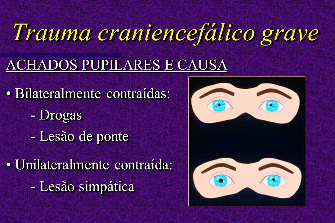 Trauma craniencefálico grave ACHADOS PUPILARES E CAUSA Bilateralmente contraídas: - Drogas - Lesão de ponte Bilateralmente contraídas: - Drogas - Lesão de ponte Unilateralmente contraída: - Lesão simpática Unilateralmente contraída: - Lesão simpática ACHADOS PUPILARES E CAUSA Bilateralmente contraídas: - Drogas - Lesão de ponte Bilateralmente contraídas: - Drogas - Lesão de ponte Unilateralmente contraída: - Lesão simpática Unilateralmente contraída: - Lesão simpática