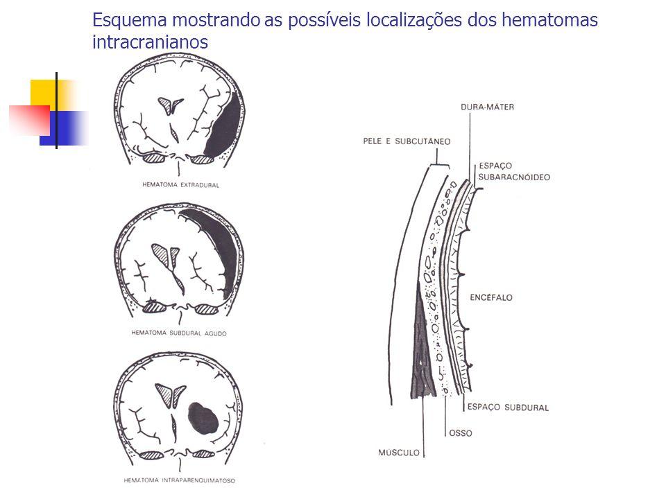 Esquema mostrando as possíveis localizações dos hematomas intracranianos