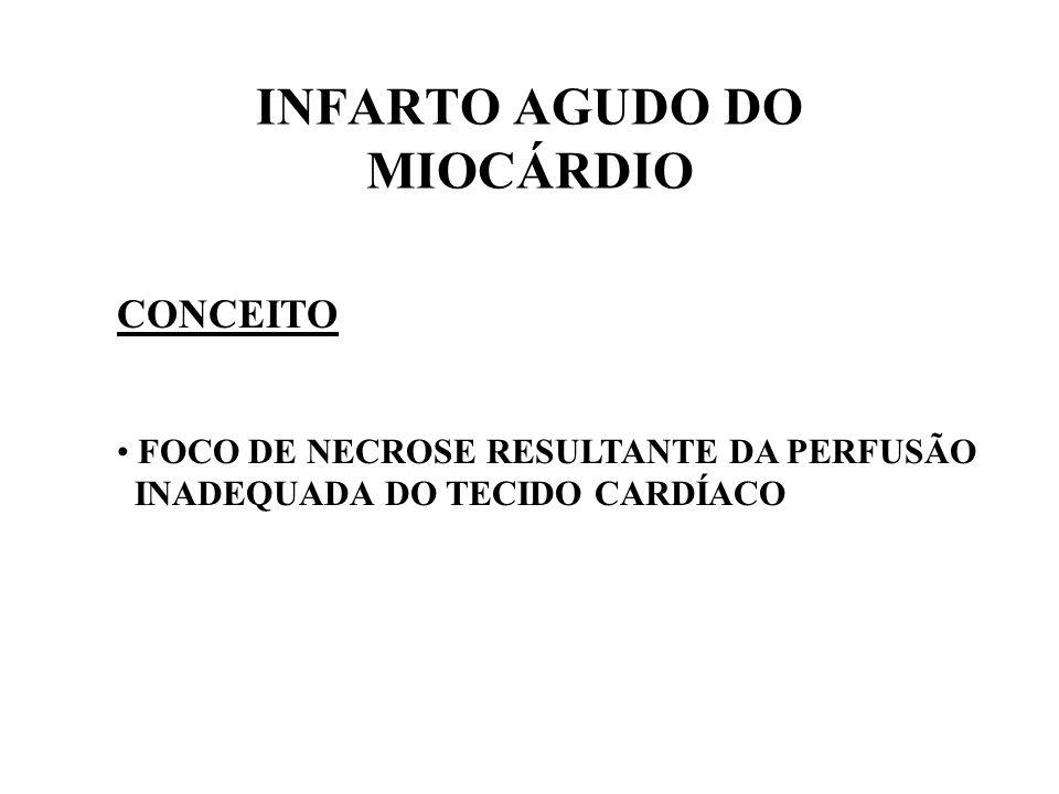INFARTO AGUDO DO MIOCÁRDIO CONCEITO FOCO DE NECROSE RESULTANTE DA PERFUSÃO INADEQUADA DO TECIDO CARDÍACO