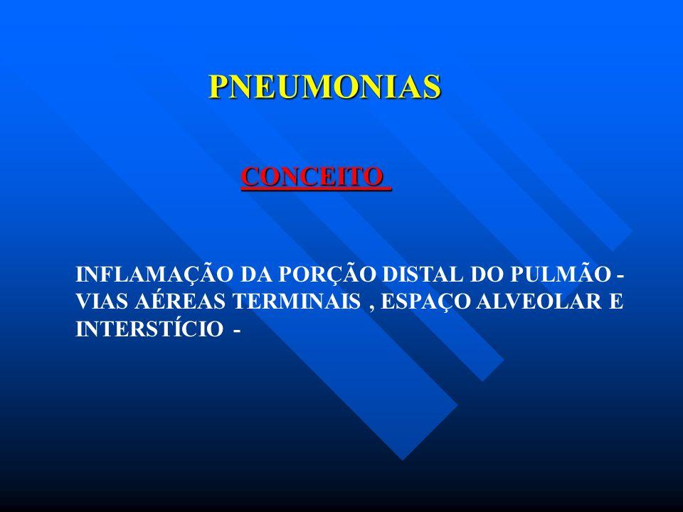 PNEUMONIAS CLASSIFICAÇÃO COMUNITÁRIA X HOSPITALAR VIRÓTICA X BACTERIANA x ATÍPICA