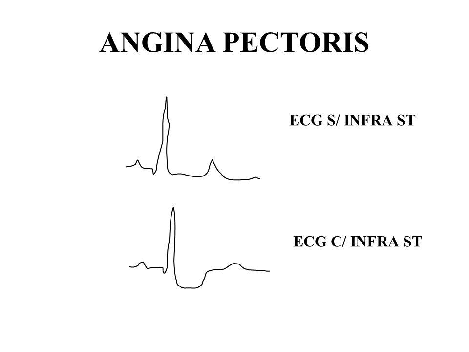 ANGINA PECTORIS ECG S/ INFRA ST ECG C/ INFRA ST