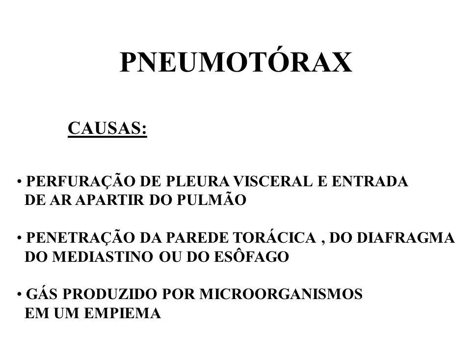PNEUMOTÓRAX CAUSAS: PERFURAÇÃO DE PLEURA VISCERAL E ENTRADA DE AR APARTIR DO PULMÃO PENETRAÇÃO DA PAREDE TORÁCICA, DO DIAFRAGMA DO MEDIASTINO OU DO ES