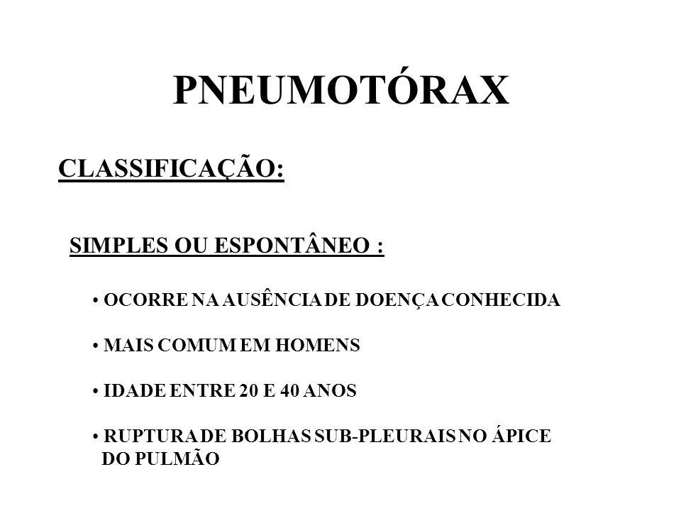PNEUMOTÓRAX CLASSIFICAÇÃO: SECUNDÁRIO OU COMPLICADO : RESULTANTE DE TRAUMATISMOS ( TIROS, FACADAS, FRATURA DE COSTELA, BAROTRAUMA, INSERÇÃO DE CATÉTER VENOSO CENTRAL ) RESULTANTE DE DOENÇAS PULMONARES ( ENFISEMA, ASMA, RUPTURA DE ABSCESSO PULMONAR, NEOPLASIAS )