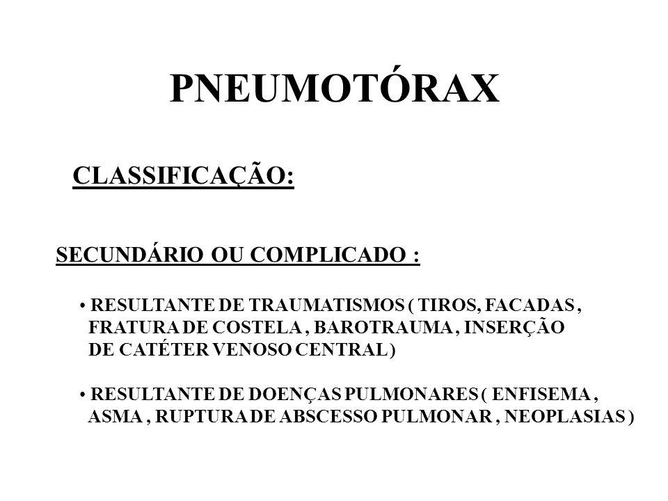 PNEUMOTÓRAX CLASSIFICAÇÃO: SECUNDÁRIO OU COMPLICADO : RESULTANTE DE TRAUMATISMOS ( TIROS, FACADAS, FRATURA DE COSTELA, BAROTRAUMA, INSERÇÃO DE CATÉTER