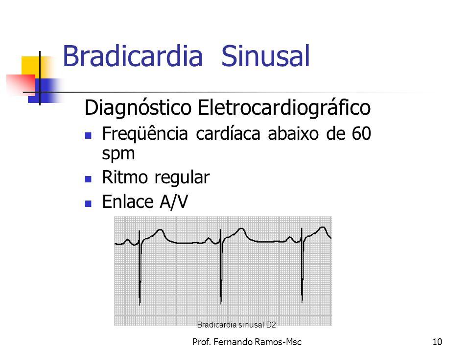 Prof. Fernando Ramos-Msc10 Bradicardia Sinusal Diagnóstico Eletrocardiográfico Freqüência cardíaca abaixo de 60 spm Ritmo regular Enlace A/V Bradicard