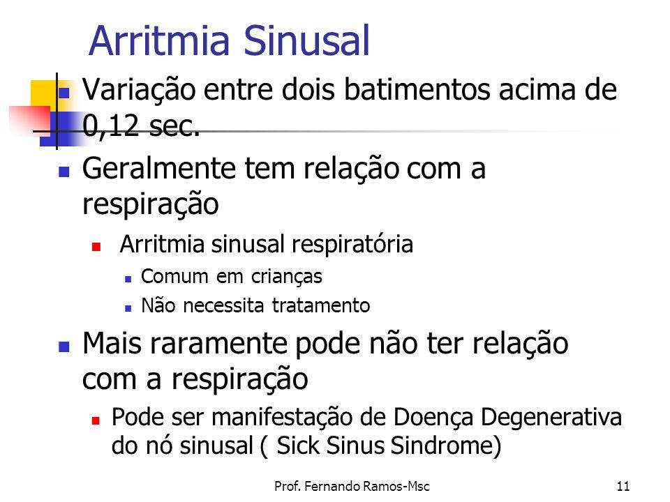 Prof. Fernando Ramos-Msc11 Arritmia Sinusal Variação entre dois batimentos acima de 0,12 sec. Geralmente tem relação com a respiração Arritmia sinusal