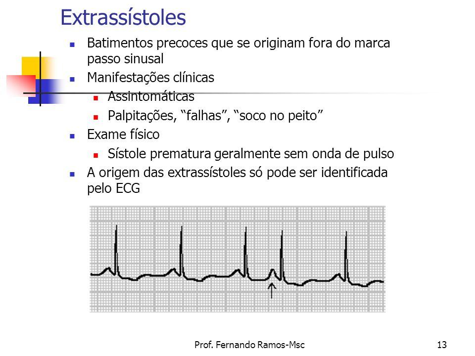 Prof. Fernando Ramos-Msc13 Extrassístoles Batimentos precoces que se originam fora do marca passo sinusal Manifestações clínicas Assintomáticas Palpit