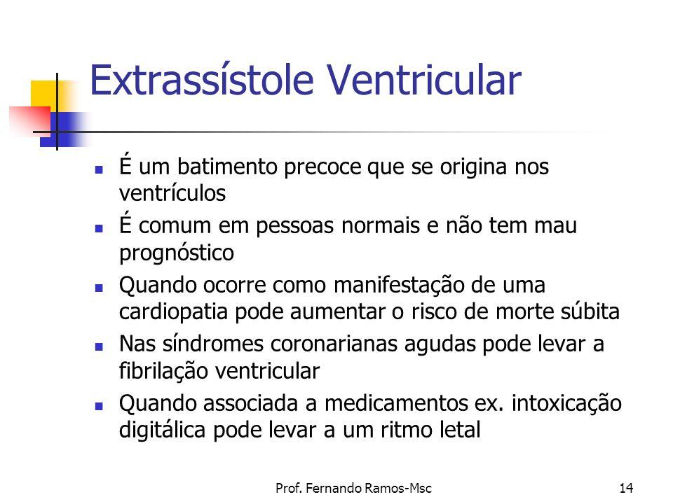 Prof. Fernando Ramos-Msc14 Extrassístole Ventricular É um batimento precoce que se origina nos ventrículos É comum em pessoas normais e não tem mau pr