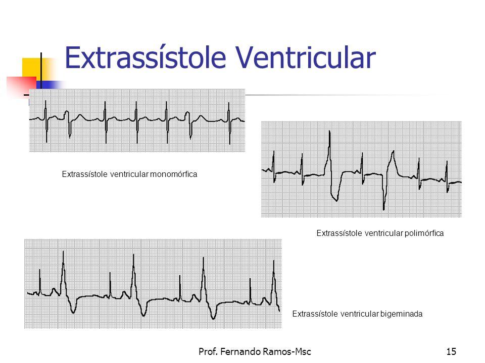 Prof. Fernando Ramos-Msc15 Extrassístole Ventricular Extrassístole ventricular monomórfica Extrassístole ventricular polimórfica Extrassístole ventric