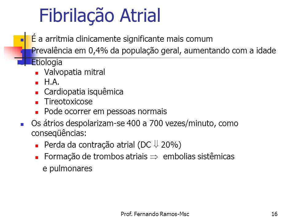 Prof. Fernando Ramos-Msc16 Fibrilação Atrial É a arritmia clinicamente significante mais comum Prevalência em 0,4% da população geral, aumentando com
