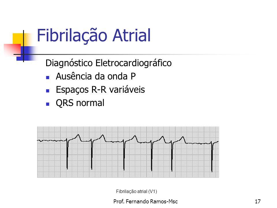 Prof. Fernando Ramos-Msc17 Fibrilação Atrial Diagnóstico Eletrocardiográfico Ausência da onda P Espaços R-R variáveis QRS normal Fibrilação atrial (V1