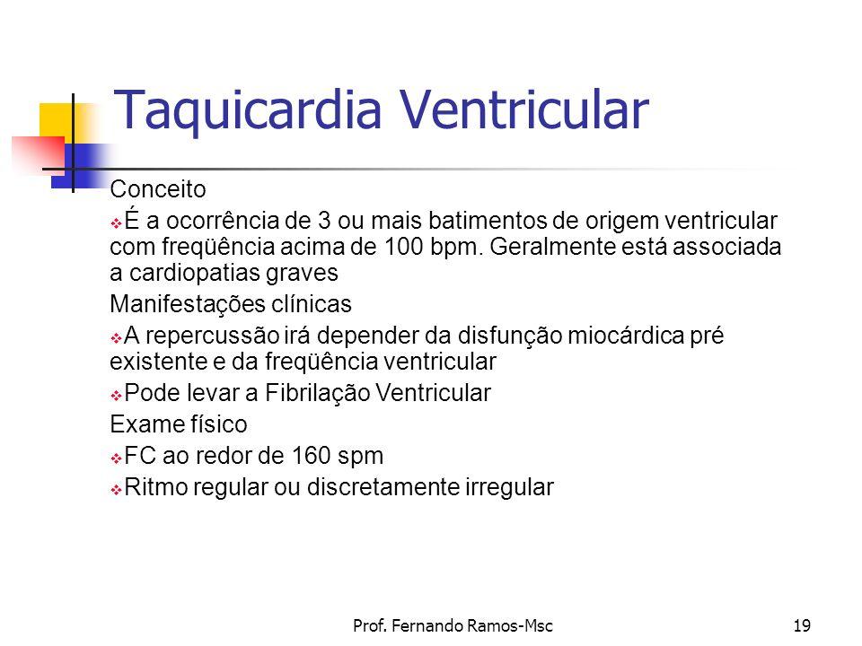 Prof. Fernando Ramos-Msc19 Taquicardia Ventricular Conceito É a ocorrência de 3 ou mais batimentos de origem ventricular com freqüência acima de 100 b