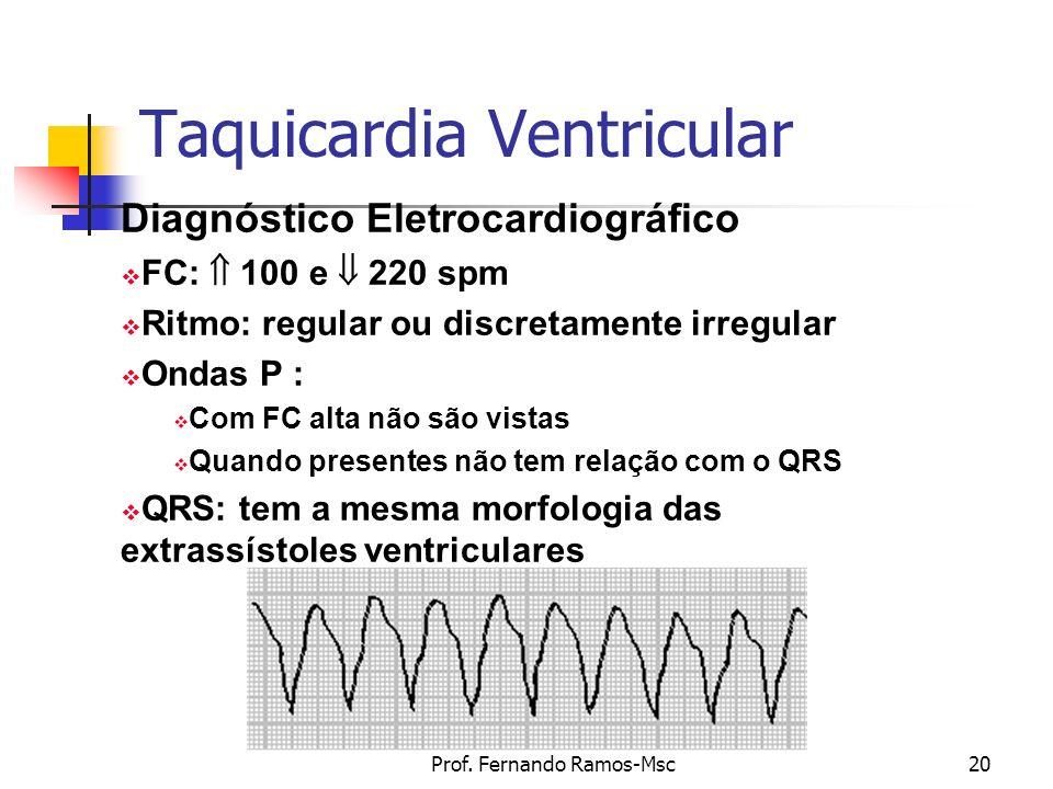 Prof. Fernando Ramos-Msc20 Taquicardia Ventricular Diagnóstico Eletrocardiográfico FC: 100 e 220 spm Ritmo: regular ou discretamente irregular Ondas P