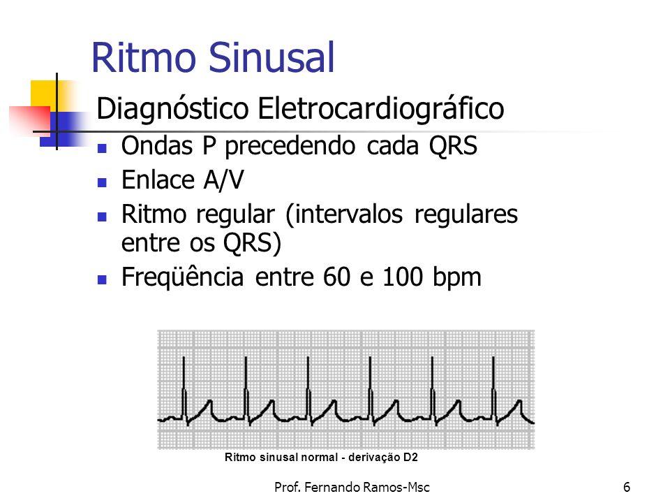 Prof. Fernando Ramos-Msc6 Ritmo Sinusal Diagnóstico Eletrocardiográfico Ondas P precedendo cada QRS Enlace A/V Ritmo regular (intervalos regulares ent